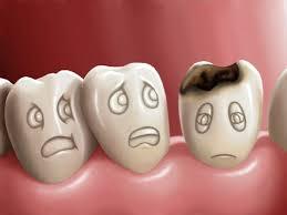 Bệnh sâu răng do nguyên nhân nào và cách phòng tránh ra sao? 1