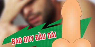 dai-bao-quy-dau-chua-tri-bang-cach-nao
