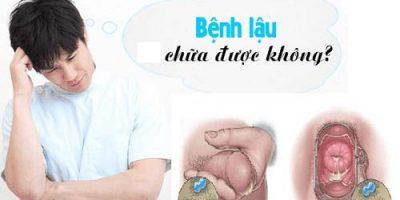 benh-lau-co-chua-duoc-khong