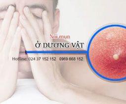 duong-vat-noi-mun