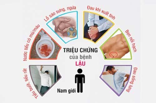 Những triệu chứng bệnh lậu ở nam giới