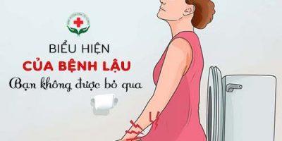 bieu-hien-cua-benh-lau-ban-khong-duoc-bo-qua